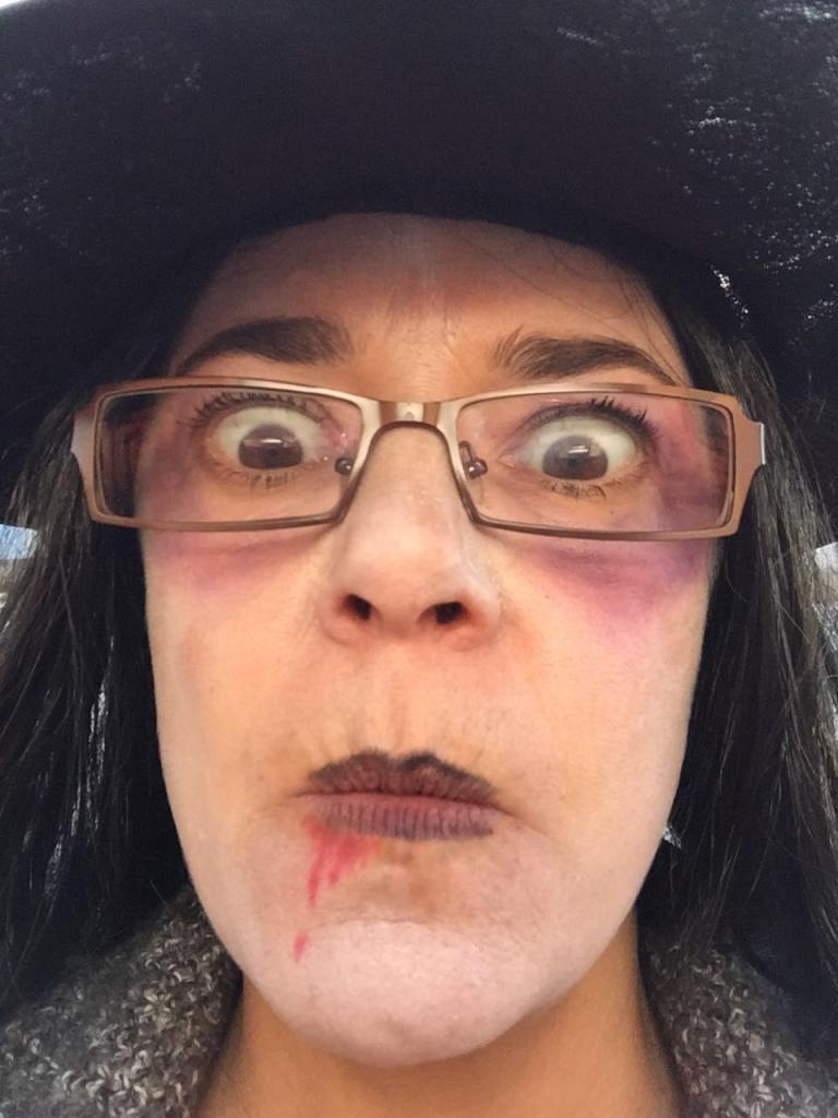 Trop mangé de bonbons Claudia ?